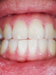 Tooth Sensitivity and how to treat it