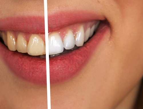 Remedies for Translucent Teeth