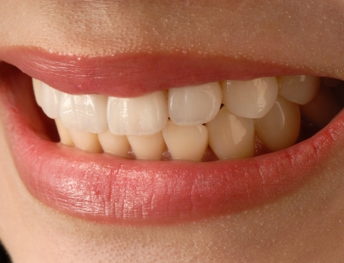 Porcelain Veneers vs. Dental Bonding