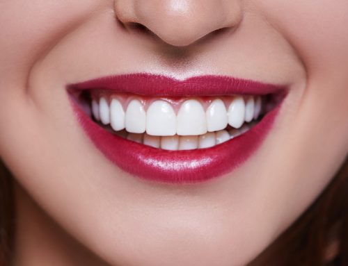 How to Make Your Teeth Straight Without the Aid of Braces or Invisalign