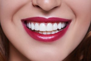 How to Make Your Teeth Straight Without Braces or Invisalign