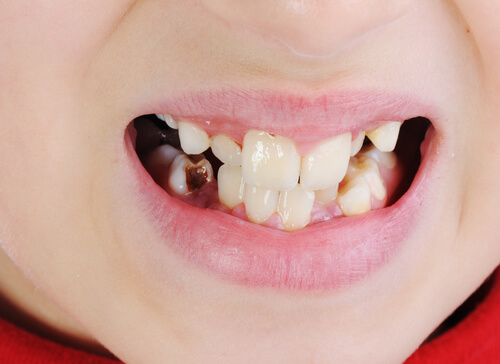 How do I know if my tooth infection is spreading?