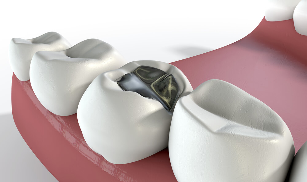 Dental Fillings – What is Best for Your Teeth?
