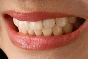 Porcelain Veneers vs. Dental Bonding