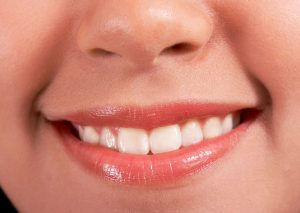 The Benefits and Side Effects Of Using Mouthwash