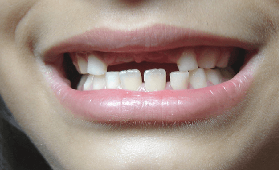 Reasons to Replace Your Missing Teeth