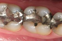 The New Coloured Tooth Fillings