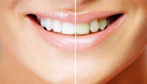 Food That Can Whiten Your Teeth Naturally