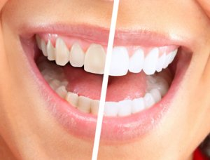 Sensitive Teeth and How to Treat Them