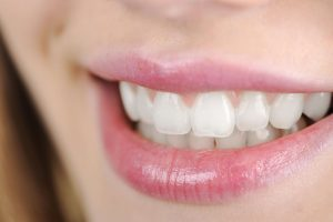 What Causes Bleeding Gums?