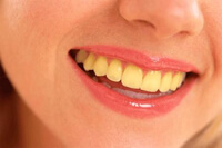 Yellow or Stained Teeth solution